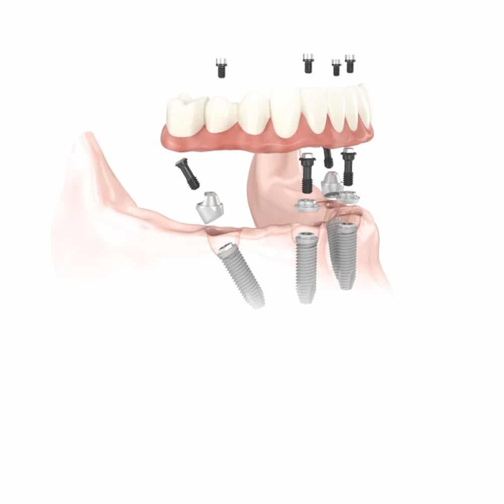 Zobne proteze so lahko pričvrščene tudi na implantate.