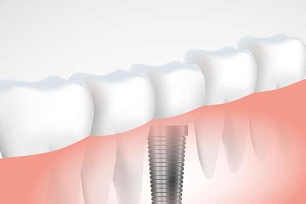 Zobni implantat je kakovostnejša rešitev kot zobni mostiček
