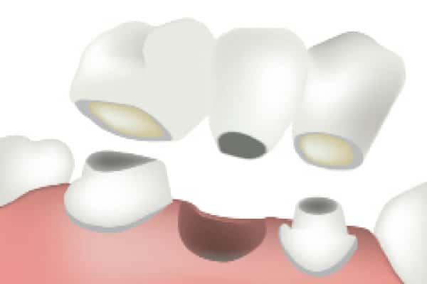 Zobni mostiček je cenejša in brezbolečinska rešitev za manjkajoč zob