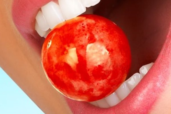 TATALOVIĆ zobozdravstvo