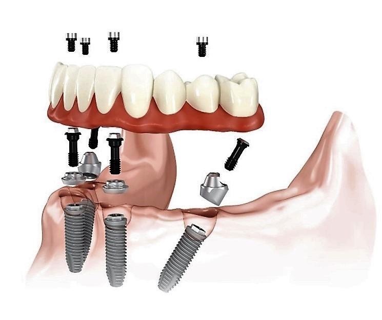 ALL ON 4 - zobno protezo pritrdijo implantati