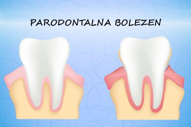 Paradontoza ali parodontoza