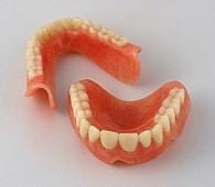 Paradontoza je najpogostejši vzrok za izpadanje zob.
