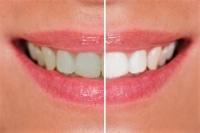 Razlika v barvnem odtenku pred in po beljenju zob