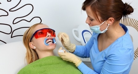 Za nasvet o beljenju zob vprašajte zobozdravnika