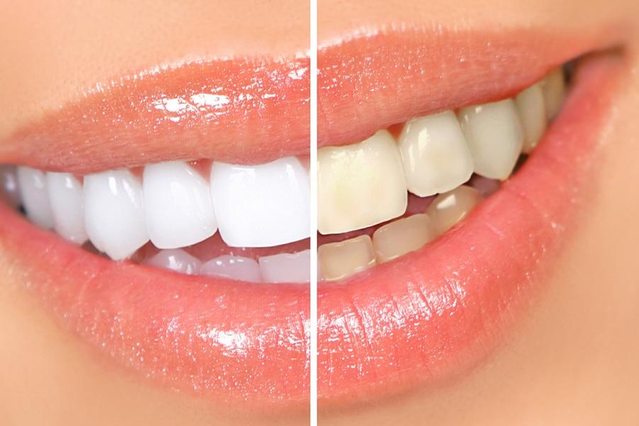 Beljenje zob je spremeni odtenek barve zob