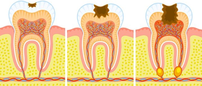 Karies prodira v globino zoba