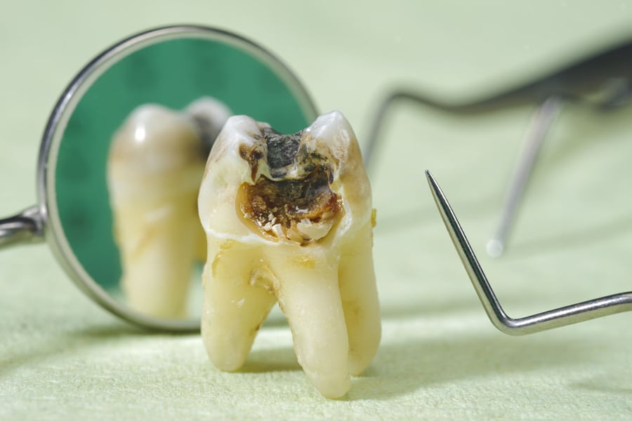 Karies uniči zob