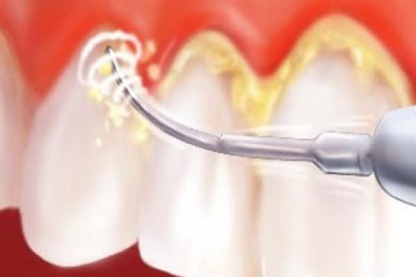 Čiščenje zobnega kamna se opravi z ultrazvočnim čistilcem