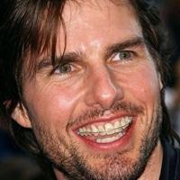 Ortodontija tudi za slavne