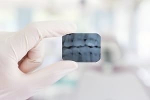 Intraoralni RTG posnetek slikanja zob