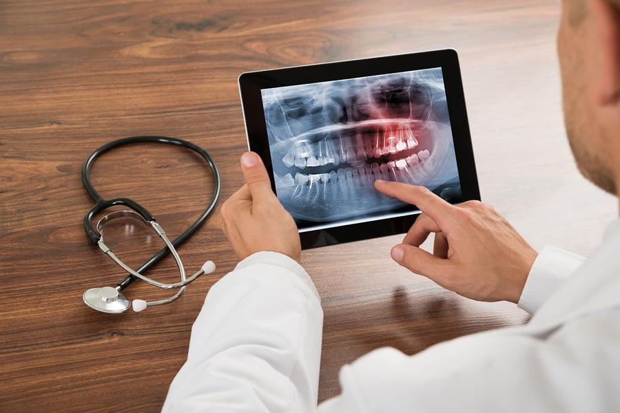Slikanje zob - zobozdravnik pregleduje RTG sliko