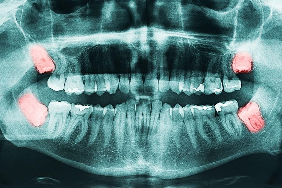 RTG posnetek modrostnih zob