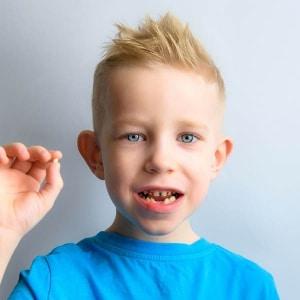Ob izpadu mlečnih zob je pravi čas za obisk ortodonta