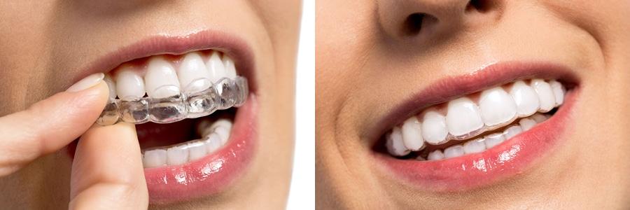 Primerjava nasmehov z in brez zobnega aparata Invisalign