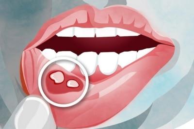 Afte v ustih in herpes na ustnici