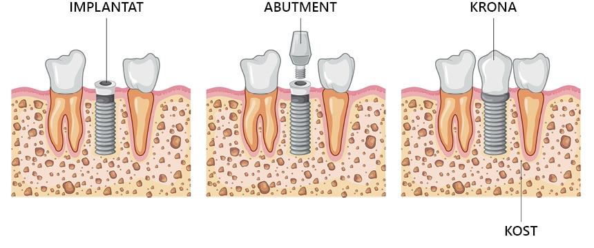 Zobni vsadek vam zobozdravnik vstavi zelo hitro.
