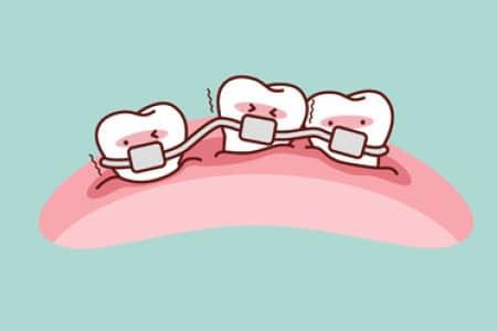 Razmike med zobmi lahko ortodont popravi z zobnim aparatom