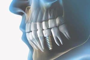 Implantat je boljša rešitev od mostička